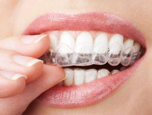 wybielanie zębów warszawa bielany